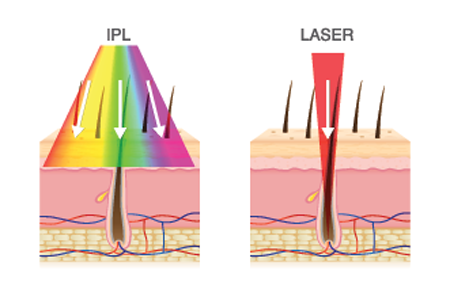 Options Laser Hair Removal IPL