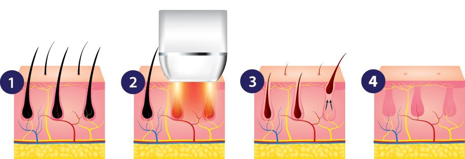 Laser Hair Removal Before During After