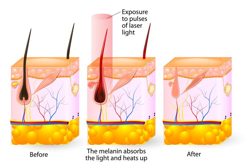 About Laser Hair Removal Livsmooth
