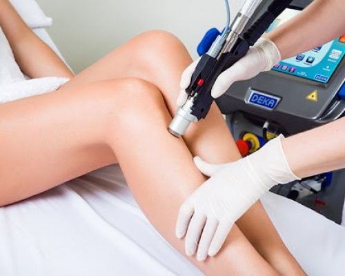 Laser Hair Removal Options